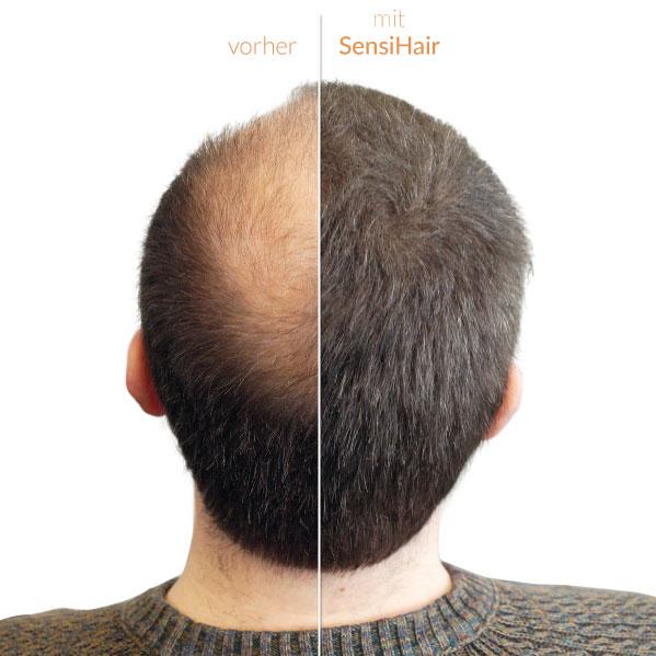 Streuhaar Schütthaar Bei Haarausfall Und Lichtem Haar